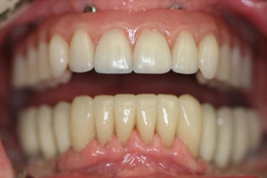 manger avec un dentier