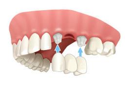 Couronne et pont | Crown and Bridge Teeth Services