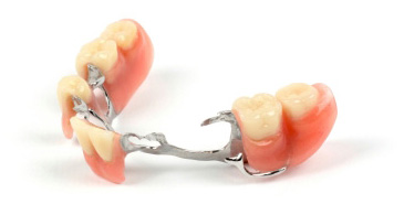 Prothèse dentaire Quebec | Dental prosthesis