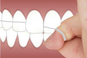 Les raisons d'utiliser la soie dentaire tous les jours